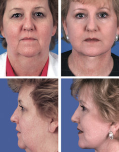 Face_Surgery before and after photos of surgical procedures.