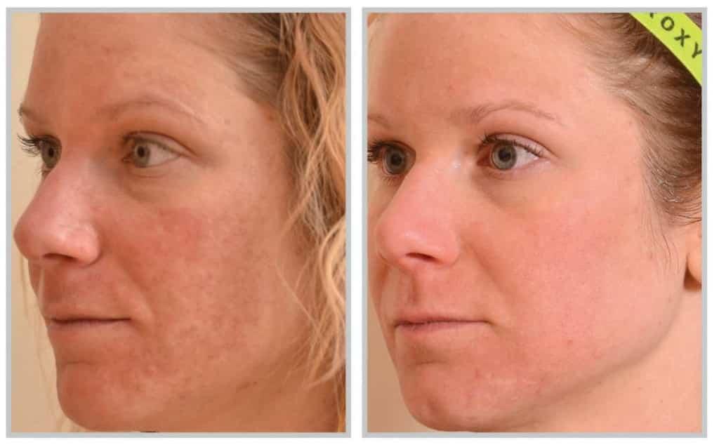 skin rejuvenation procedure