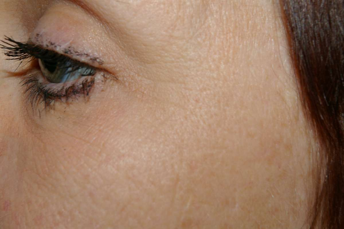 how to get rid of bruising around the eye quickly