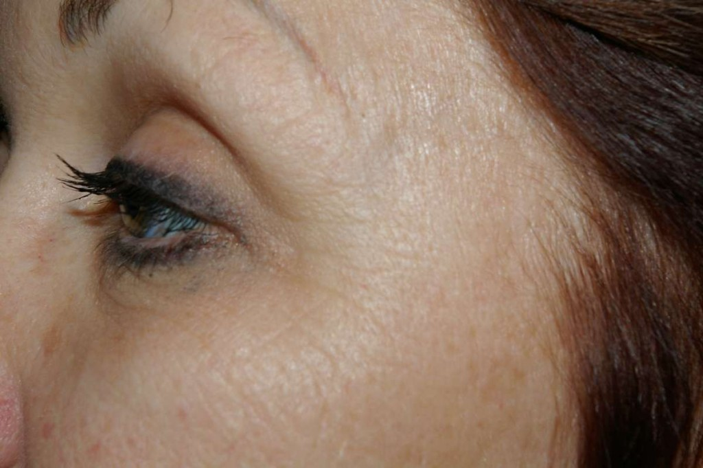 Before Eye Wrinkles Treatment