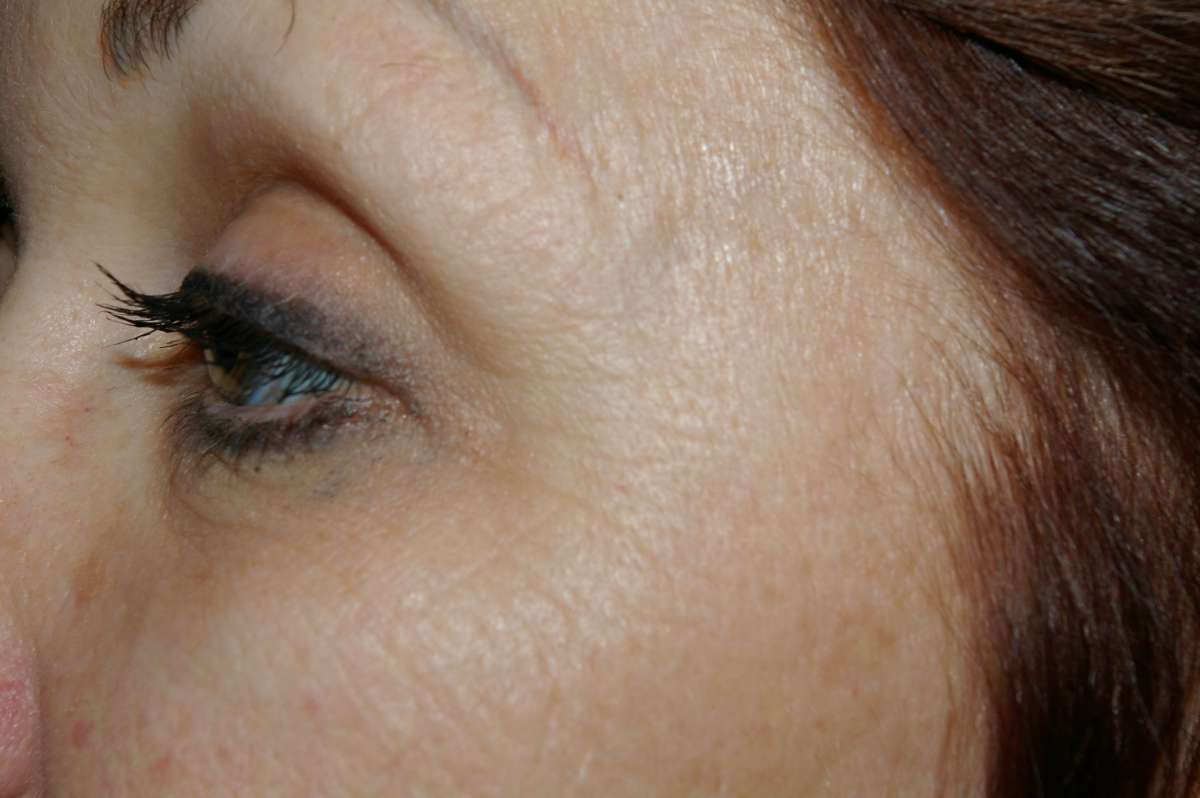 Before Eye Wrinkles Treatment