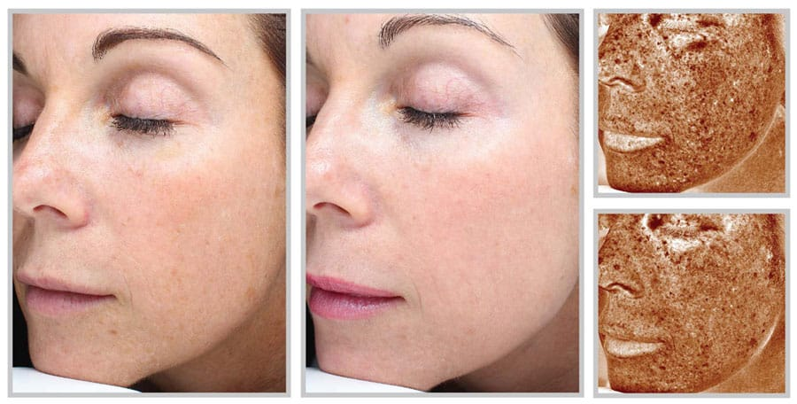 Halo Laser Skin Resurfacing - Before and After