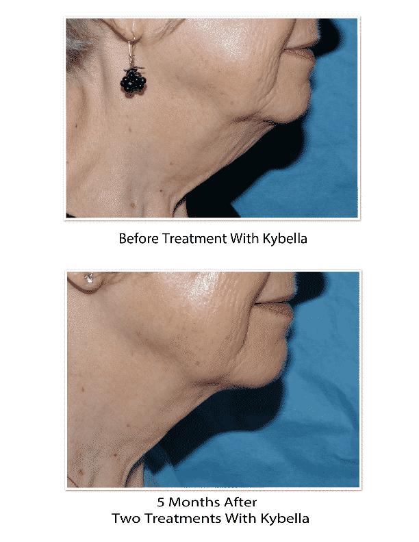 Kybella Treatment