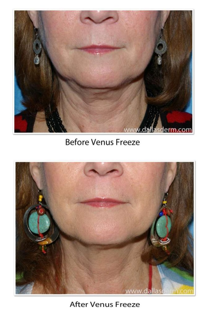 Why Choose Venus Freeze for Neck Tightening?