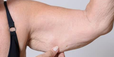 Tighten Loose Skin Feature