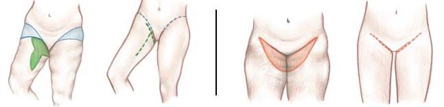 Thigh lift scars