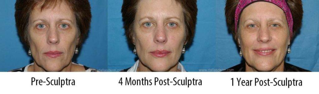 Sculptra Patient