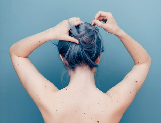 gray haired woman with moles on her back