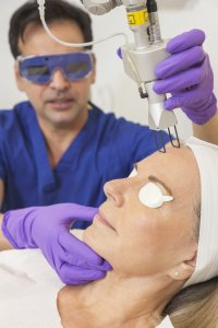 Radiofrequency laser treatment for acne
