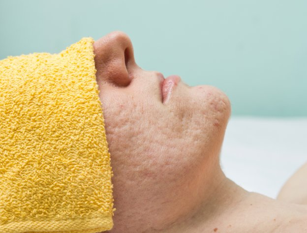 Laser Treatments for Acne Scars