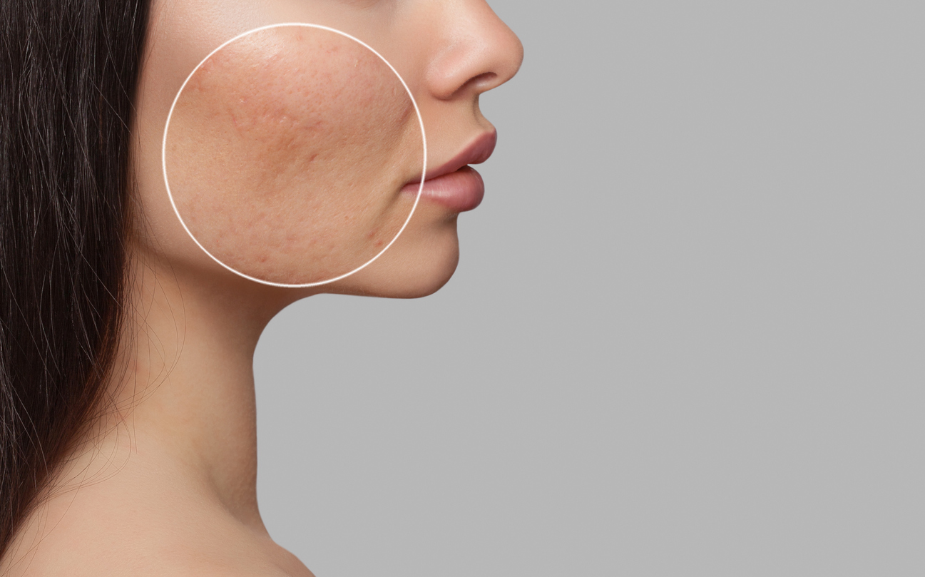 Laser treatment for acne scarring