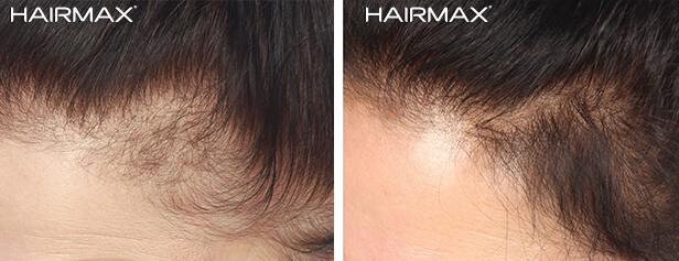 hairmax_before_after_female2
