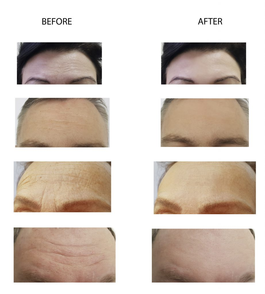 Botox Injections before and after