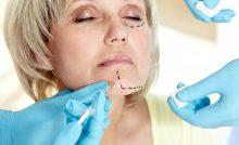 Aging Gracefully: Non-Invasive, Anti-Aging Scientific