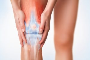 Arthritis often causes knee pain. Stem Cell Therapy may be a promising new treatment for the condition.
