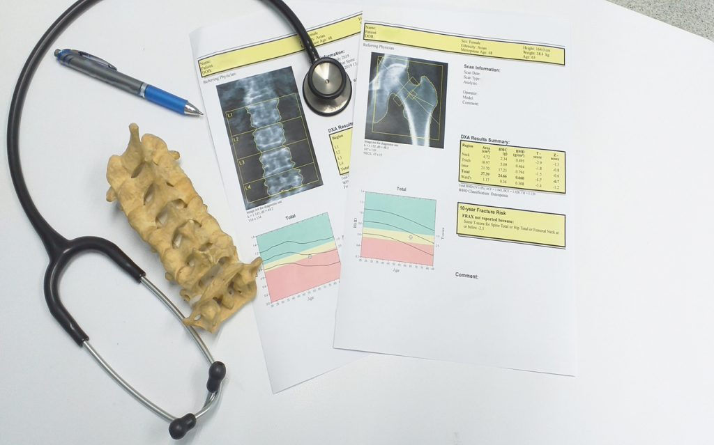 Knowing your bone density is the first step in reversing osteporosis