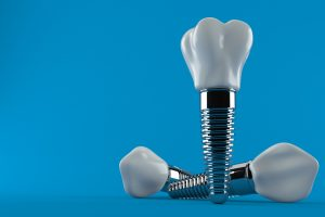 One of the types of dental implants come in two pieces. The screw (implant) and the crown that covers it.