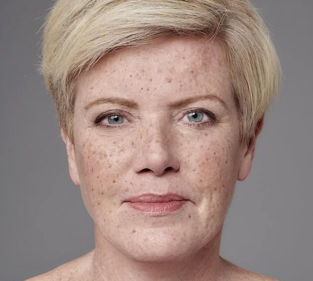 Jo Howell was featured in the Daily Mail --for her freckles!
