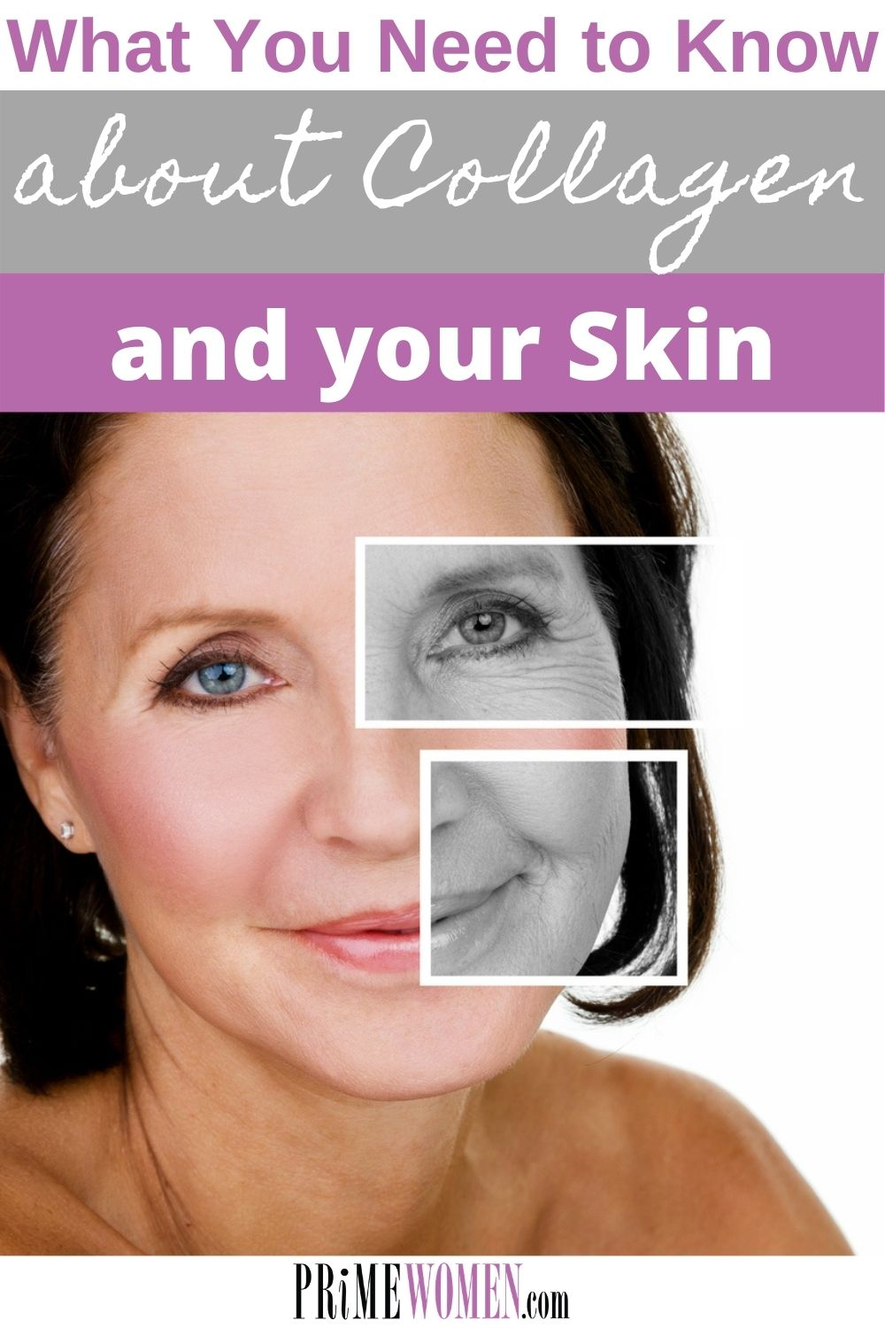 What you need to know about collagen and your skin