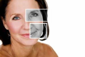 Collagen supplements can help you fight the signs of aging.