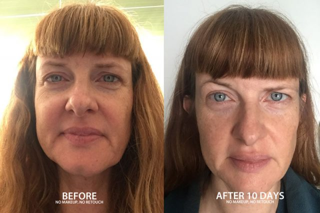 Before and After results of the Silk Therapeutics 10 Day Skincare challenge