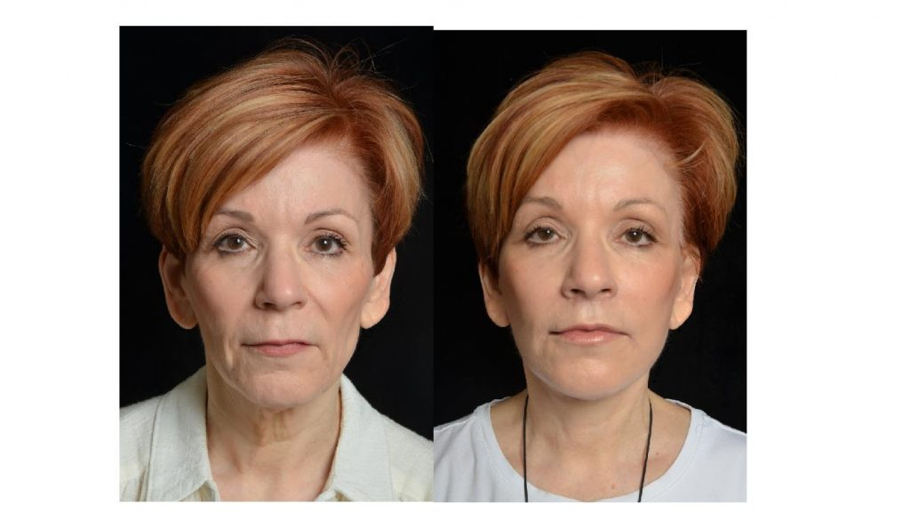 new facelift surgery