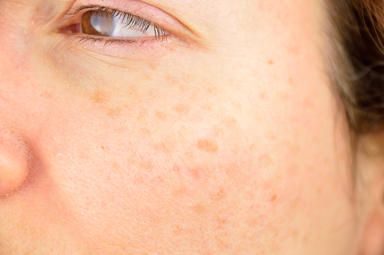 How to Finally Minimize The Appearance of Pesky Age Spots