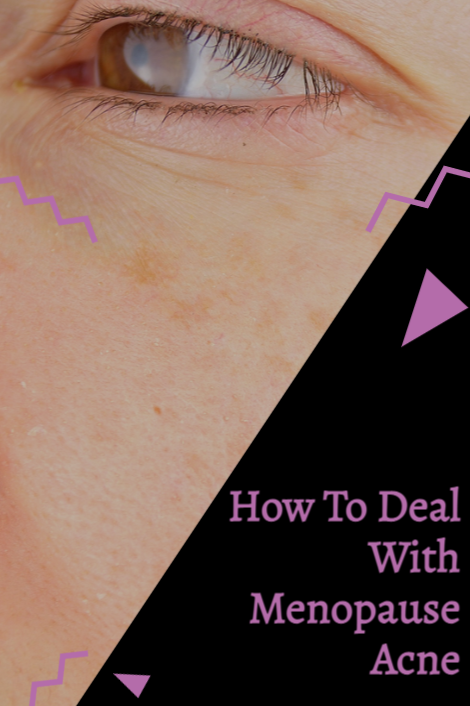 How to deal with menopause acne