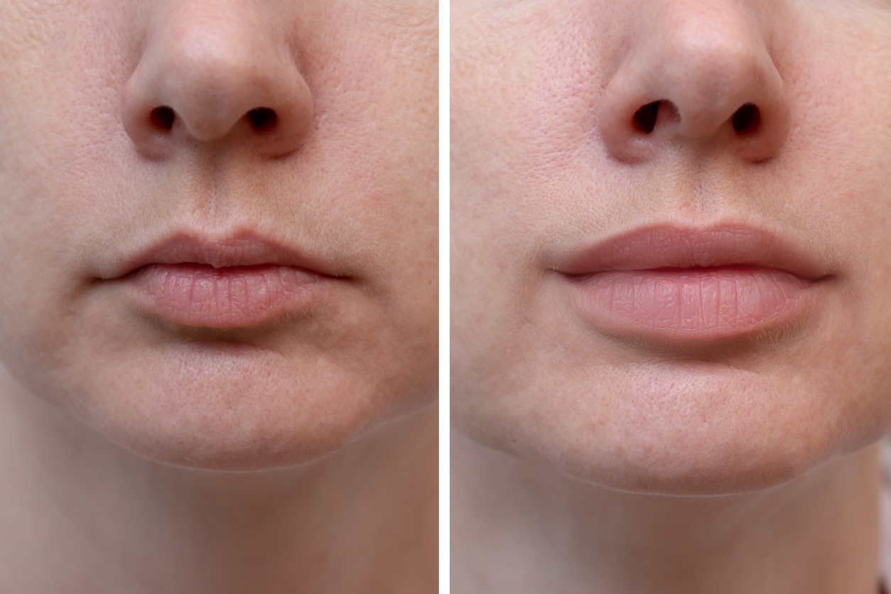 Female lips before and after lip filler