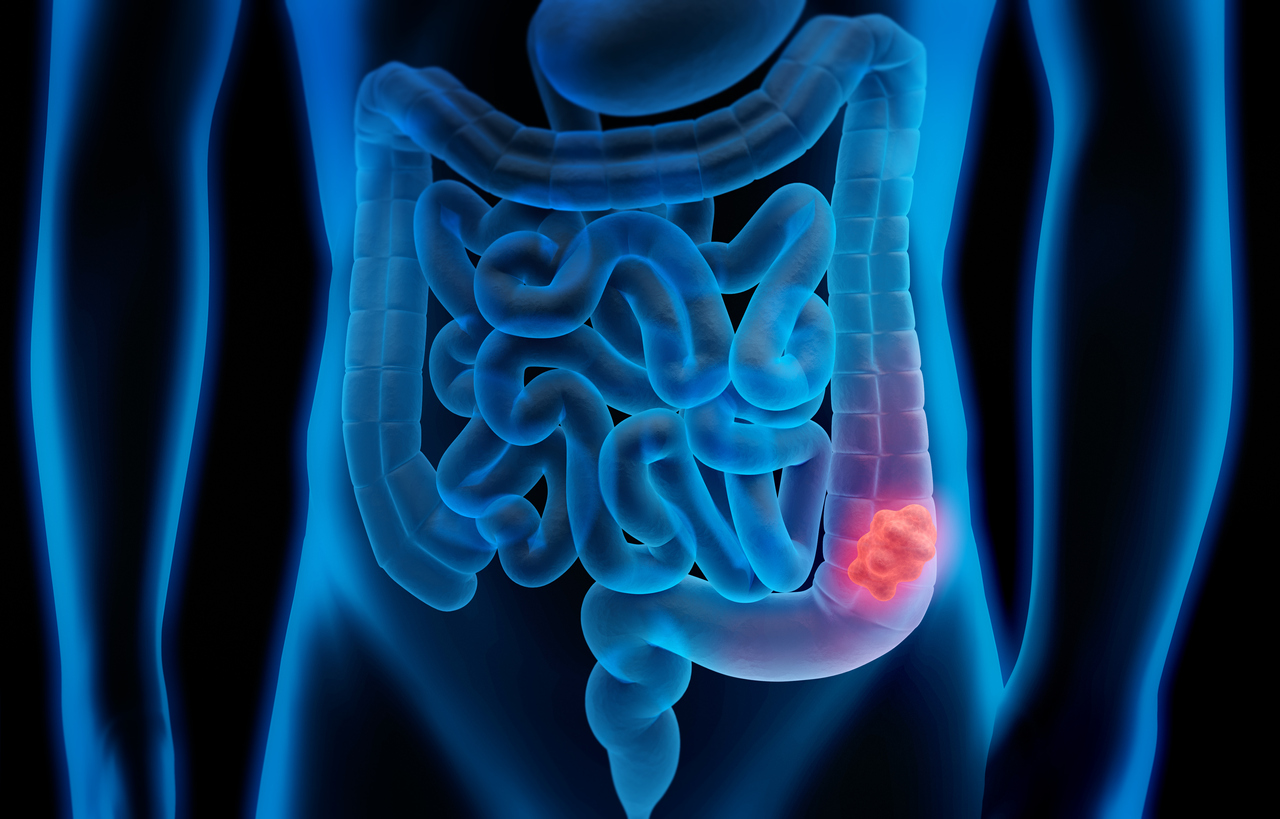 Colonoscopies, especially after 50, are important for early detection of colon cancer.