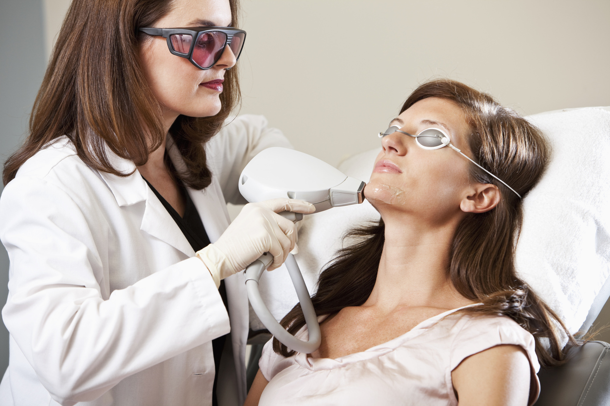 Electrolysis and laser removal for chin hair