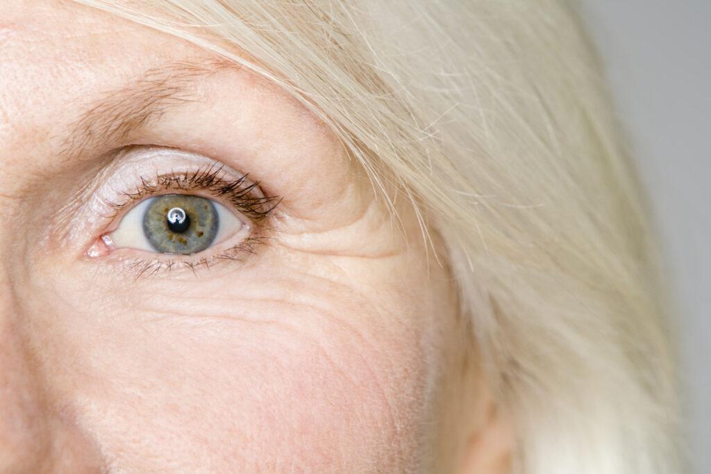 Estrogen deficiency fine lines and wrinkles