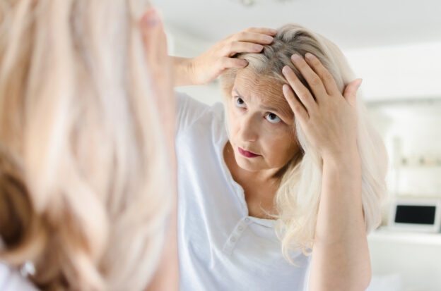 KeraHealth can improve your hair after menopause related hair loss.