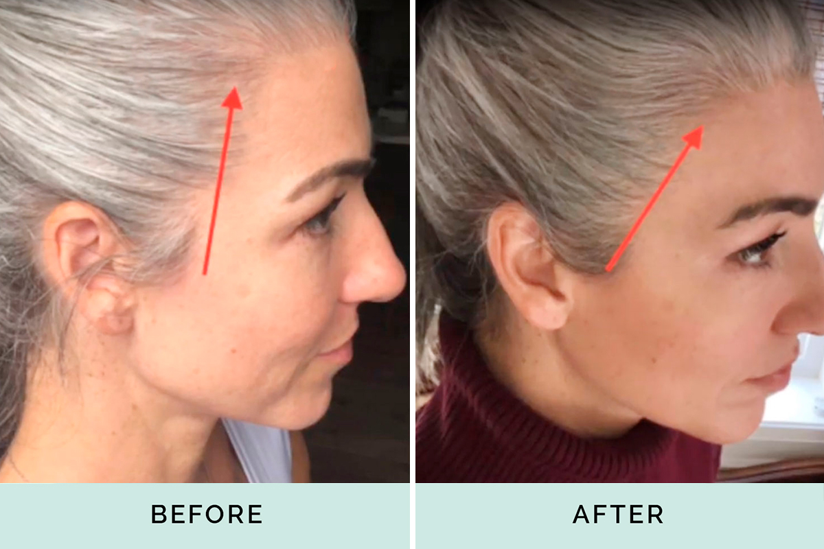 Kera Health before and after thinning hair line