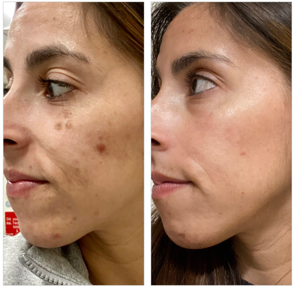 BBL HERO face before and after treatment