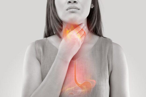 Acid reflux vs peptic ulcers