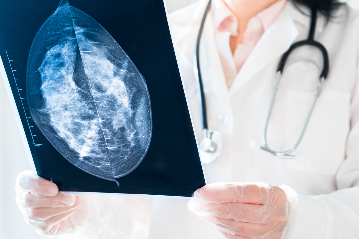 Mammogram Markers - radiologist looking at mammography results on x-ray.
